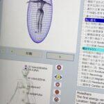 周波数の解析と修正 I-SCAN